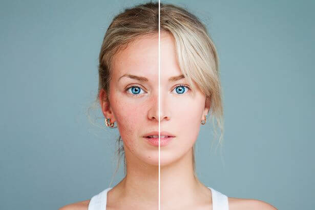 Suchá pleť ženy, pred a po aplikácií krému