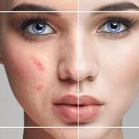 Jazvy po akné: Ako sa ich zbaviť raz a navždy?